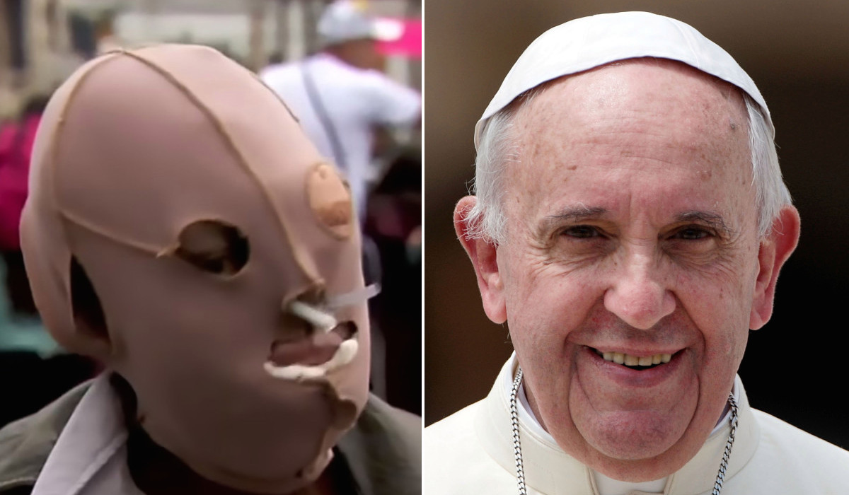Pope Francis with acid victim